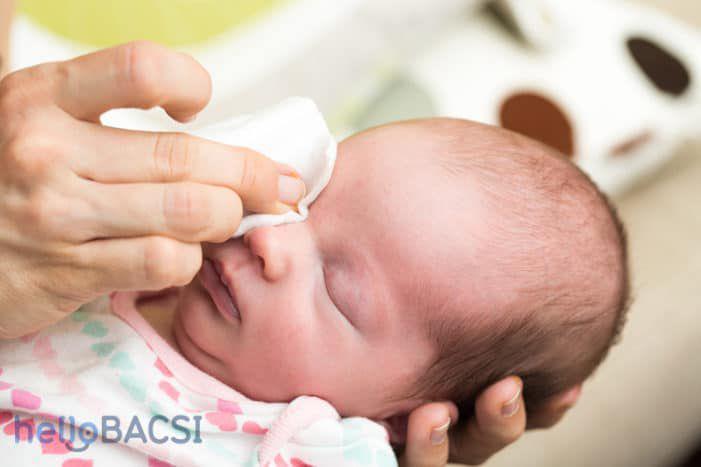 Tìm hiểu về chứng chảy nước mắt sống ở trẻ sơ sinh